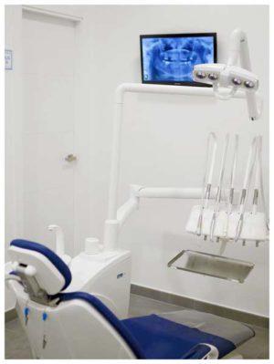 Implantes Dentales en Estepona